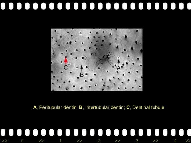 >> 0 >> 1 >> 2 >> 3 >> 4 >> A, Peritubular dentin; B, Intertubular dentin; C, Dentinal tubule