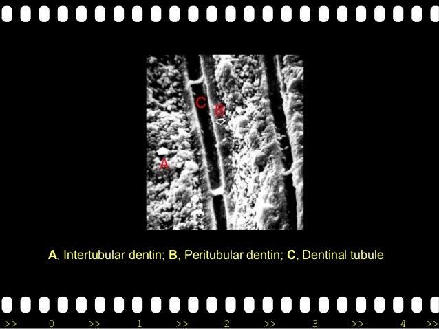 >> 0 >> 1 >> 2 >> 3 >> 4 >> A, Intertubular dentin; B, Peritubular dentin; C, Dentinal tubule