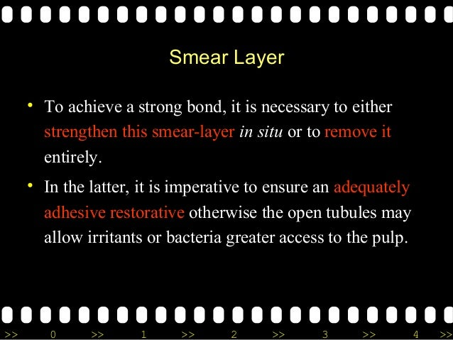 >> 0 >> 1 >> 2 >> 3 >> 4 >> Smear Layer • To achieve a strong bond, it is necessary to either strengthen this smear-layer ...