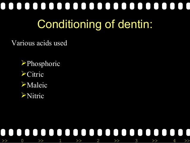 >> 0 >> 1 >> 2 >> 3 >> 4 >> Conditioning of dentin: Various acids used Phosphoric Citric Maleic Nitric