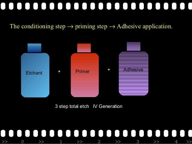 >> 0 >> 1 >> 2 >> 3 >> 4 >> Etchant Primer Adhesive+ + Etchant Primer AdhesivePrimer and adhesive 3 step total etch IV Gen...