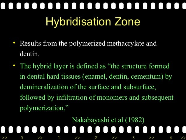 >> 0 >> 1 >> 2 >> 3 >> 4 >> Hybridisation Zone • Results from the polymerized methacrylate and dentin. • The hybrid layer ...