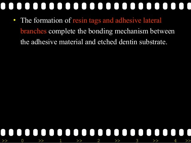 >> 0 >> 1 >> 2 >> 3 >> 4 >> • The formation of resin tags and adhesive lateral branches complete the bonding mechanism bet...