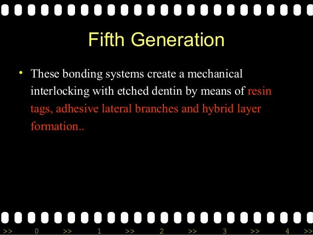 >> 0 >> 1 >> 2 >> 3 >> 4 >> Fifth Generation • These bonding systems create a mechanical interlocking with etched dentin b...