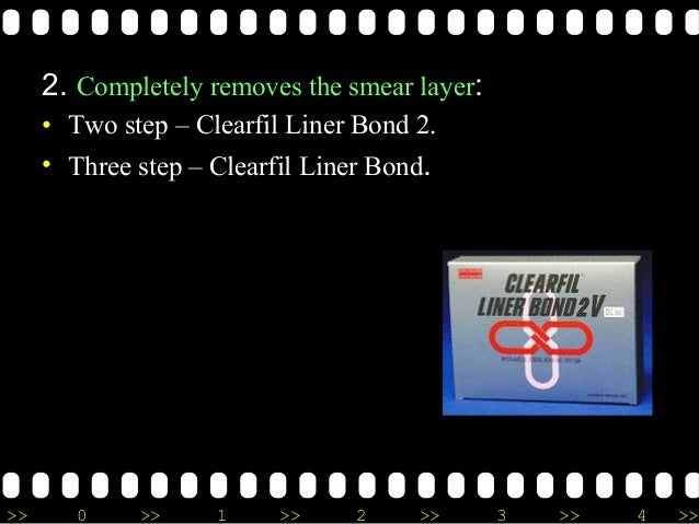 >> 0 >> 1 >> 2 >> 3 >> 4 >> 2. Completely removes the smear layer: • Two step – Clearfil Liner Bond 2. • Three step – Clea...