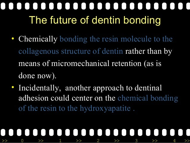 >> 0 >> 1 >> 2 >> 3 >> 4 >> The future of dentin bonding • Chemically bonding the resin molecule to the collagenous struct...