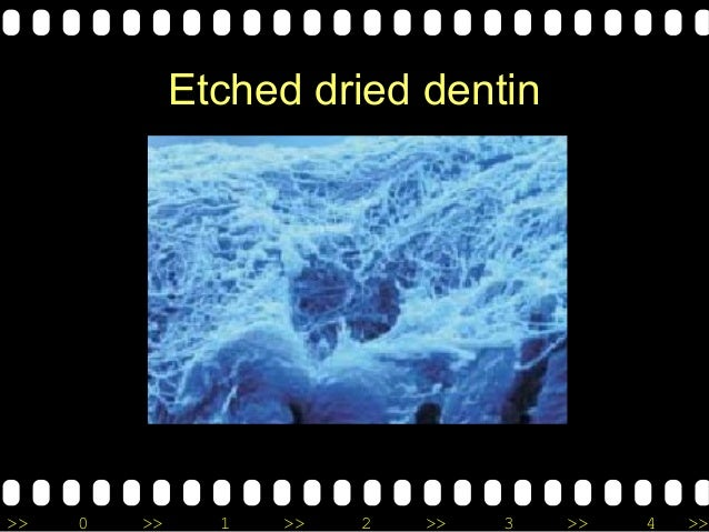 >> 0 >> 1 >> 2 >> 3 >> 4 >> Etched dried dentin