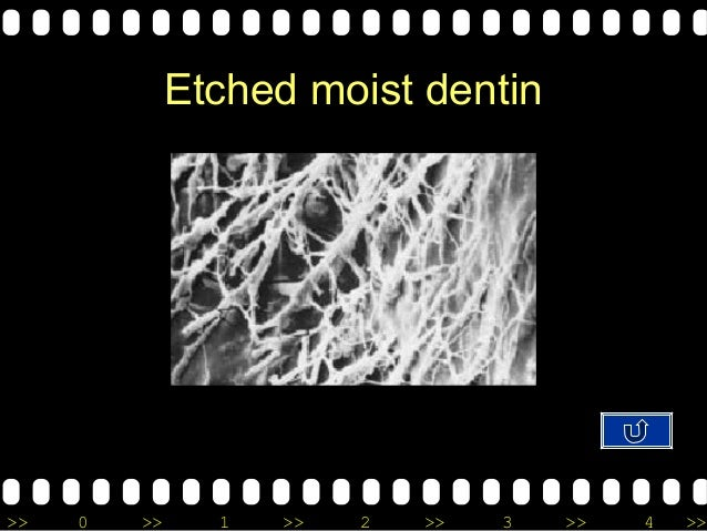 >> 0 >> 1 >> 2 >> 3 >> 4 >> Etched moist dentin