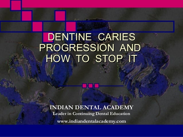 DENTINE CARIESPROGRESSION AND HOW TO STOP IT INDIAN DENTAL ACADEMY  Leader in Continuing Dental Education    www.indianden...