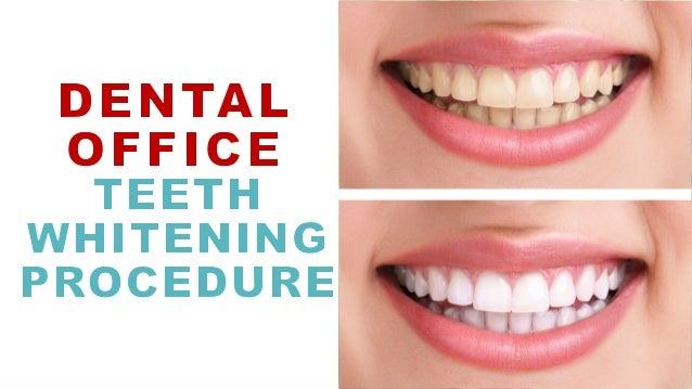 Dentist Office Teeth Whitening Procedure