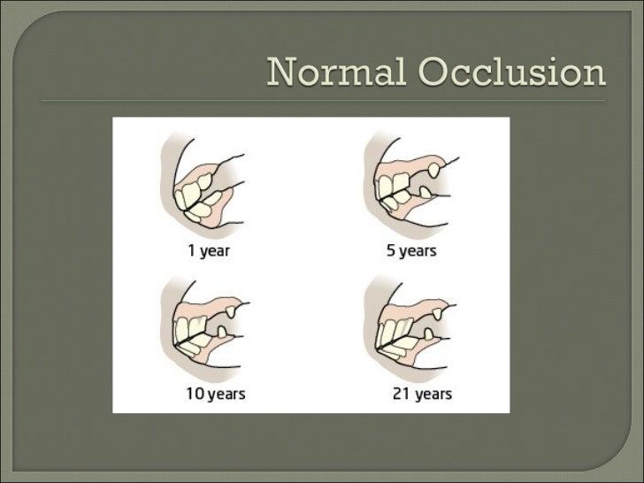 Pre-menstrual unilateral facial swelling