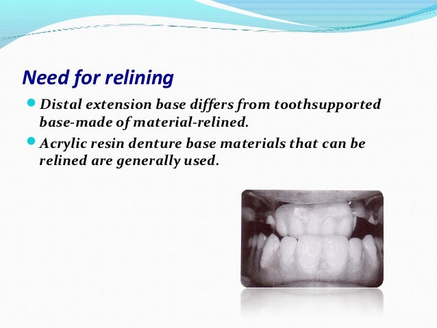 Need for reliningDistal extension base differs from toothsupported base-made of material-relined.Acrylic resin denture b...
