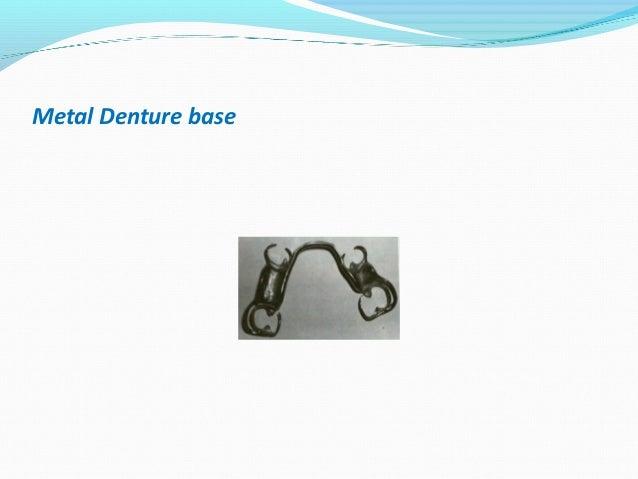 Metal Denture base