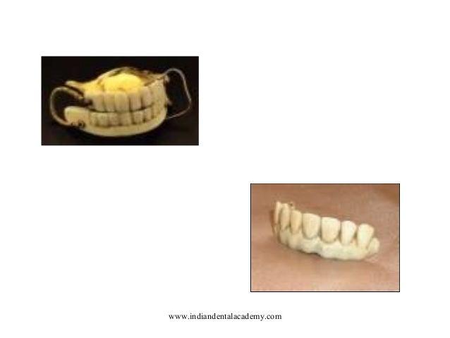 Denture Base Resins Cosmetic Dentistry Training