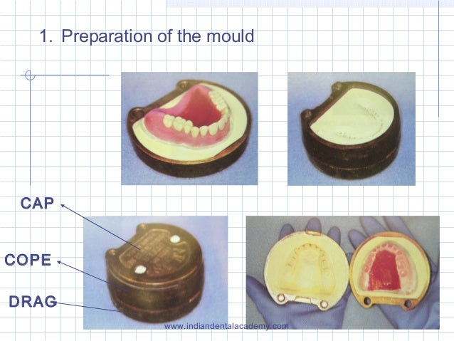 1. Preparation of the mould CAP COPE DRAG www.indiandentalacademy.com