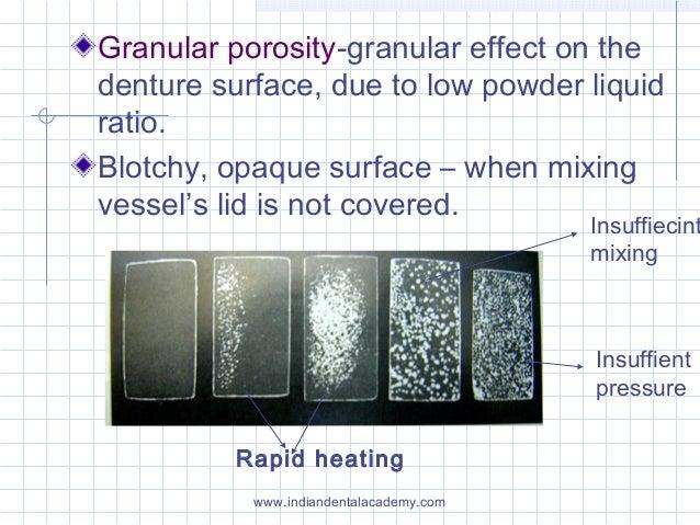 Granular porosity-granular effect on the denture surface, due to low powder liquid ratio. Blotchy, opaque surface – when m...