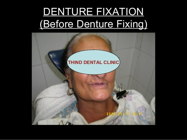 DENTURE FIXATION(Before Denture Fixing)      THIND DENTAL CLINIC
