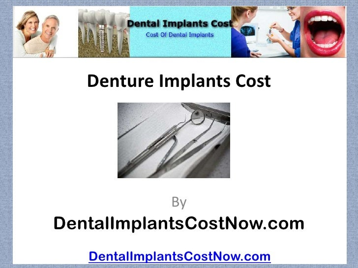 Denture Implants Cost              ByDentalImplantsCostNow.com   DentalImplantsCostNow.com