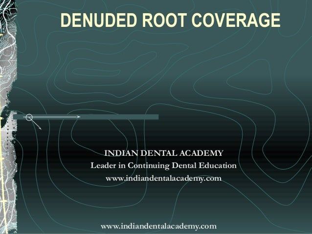DENUDED ROOT COVERAGE     INDIAN DENTAL ACADEMY  Leader in Continuing Dental Education     www.indiandentalacademy.com    ...