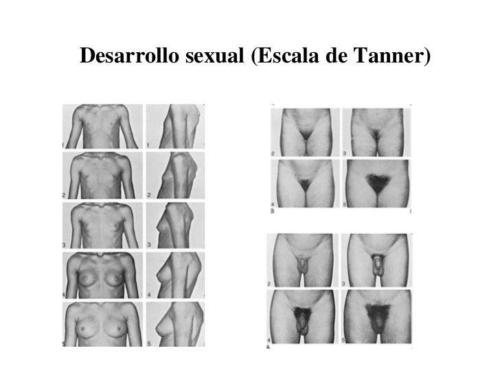 desarrollo sexual escala de tanner