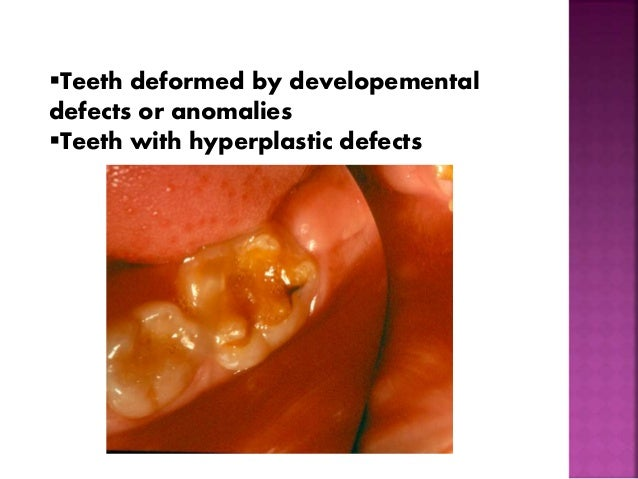 Teeth deformed by developemental  defects or anomalies  Teeth with hyperplastic defects
