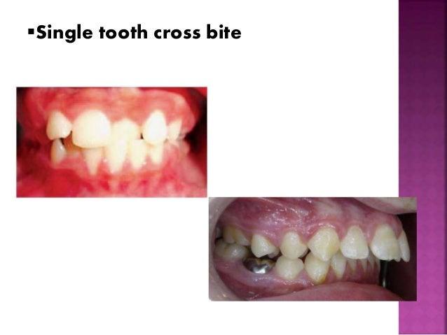 Single tooth cross bite