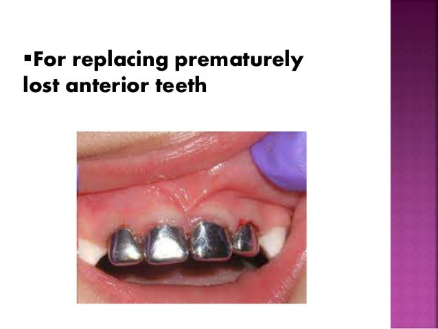 For replacing prematurely  lost anterior teeth