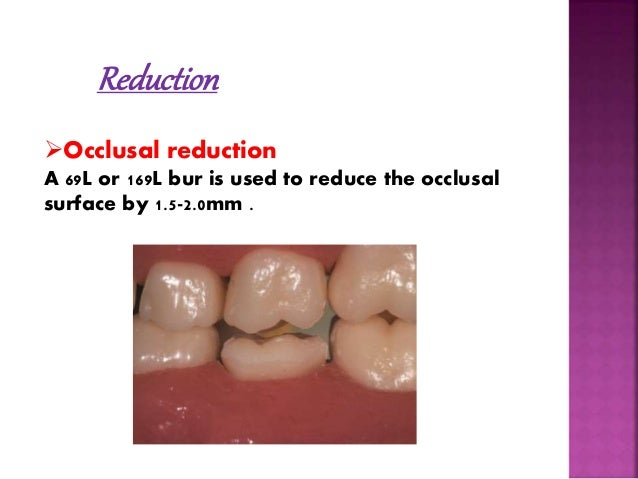 Reduction  Occlusal reduction  A 69L or 169L bur is used to reduce the occlusal  surface by 1.5-2.0mm .