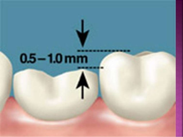 Proximal slices  place the wooden wedges in the  inter proximal embrasures, the 69L  bur is moved B-L across the  proxima...
