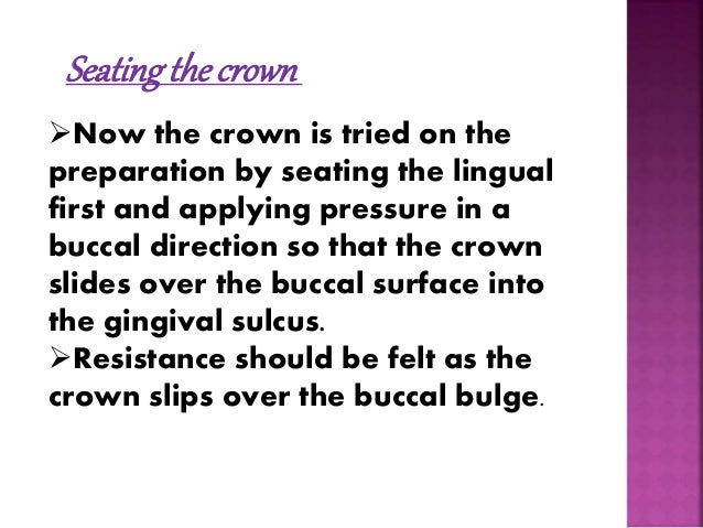 Crown contouring  Initial crown  contouring is  performed with a114  plier (ball and socket  plier) in the middle  1/3rd ...