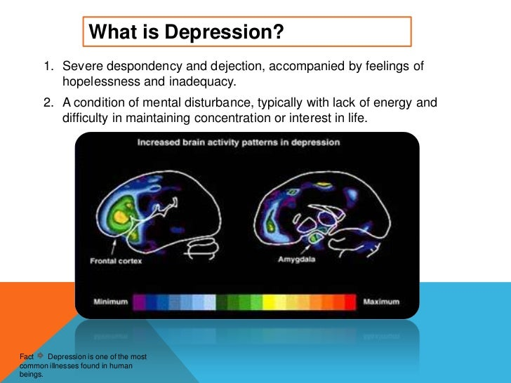 Depression powerpoint toneelgroepblik Gallery