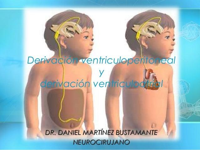 DR. DANIEL MARTÍNEZ BUSTAMANTEDR. DANIEL MARTÍNEZ BUSTAMANTE NEUROCIRUJANONEUROCIRUJANO Derivación ventriculoperitoneal y ...