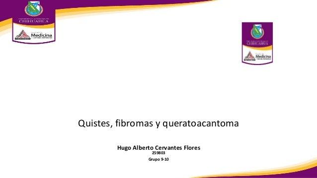 Hugo Alberto Cervantes Flores 259803 Grupo 9-10 Quistes, fibromas y queratoacantoma