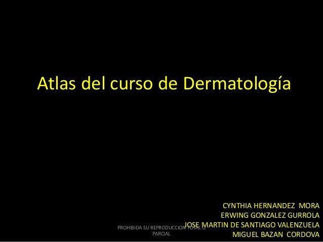 Atlas del curso de Dermatología CYNTHIA HERNANDEZ MORA ERWING GONZALEZ GURROLA JOSE MARTIN DE SANTIAGO VALENZUELA MIGUEL B...