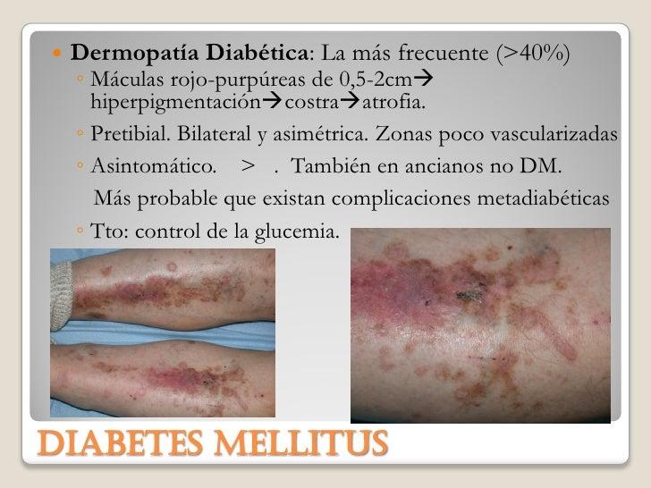 Dermatología en endocrino