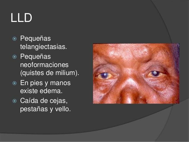 Dermatologia Lepra Esm Ipn 2016