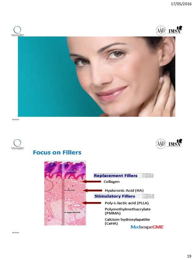Dermal filler from basic to practice