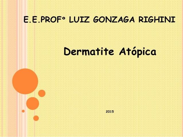 E.E.PROFº LUIZ GONZAGA RIGHINI Dermatite Atópica 2015