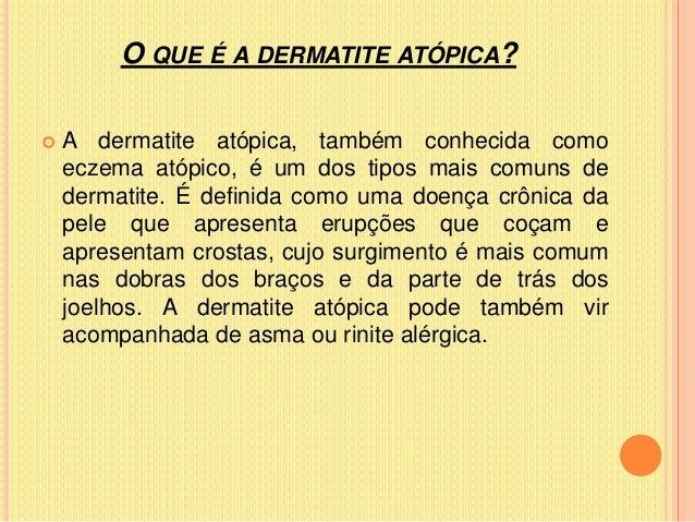 Dermatite atópica  1 A Slide 2