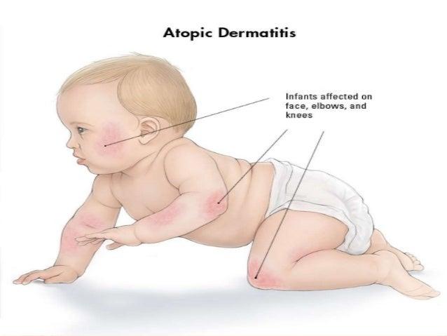 Dermatite atópica  1 A Slide 3