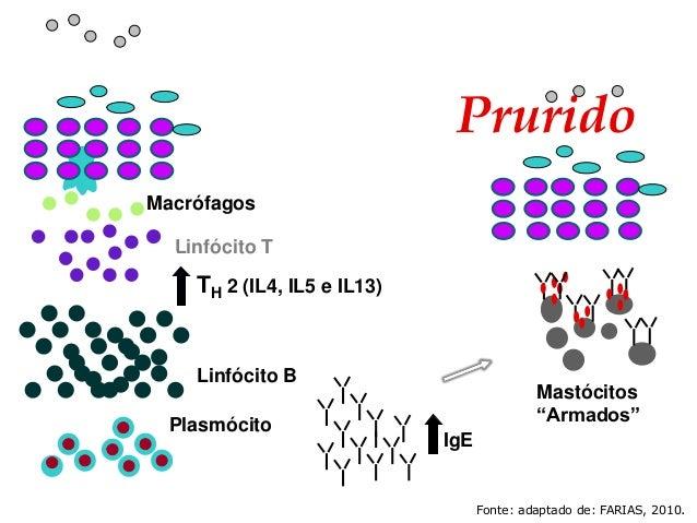 """Linfócito T Linfócito B Plasmócito IgE TH 2 (IL4, IL5 e IL13) Prurido Macrófagos Mastócitos """"Armados"""" Fonte: adaptado de: ..."""
