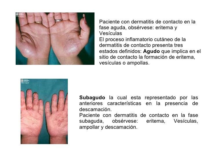 La influencia de los ungüentos hormónicos de la psoriasis