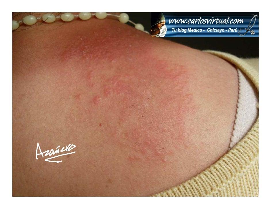 www.carlosvirtual.com               ¿Cuál es el                 uá              diagnóstico?                  nó          ...