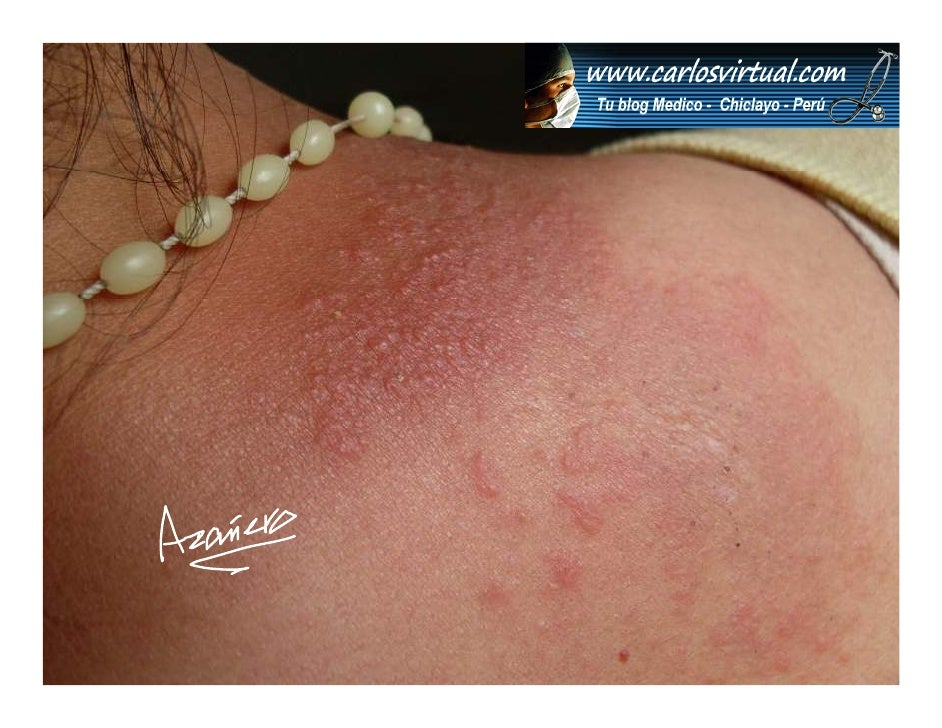 Dermatitis Alergica Slide 3