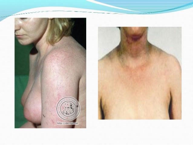 Geptral a atopicheskom la dermatitis