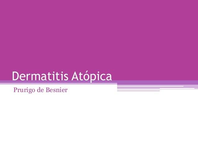 Dermatitis AtópicaPrurigo de Besnier