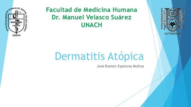 Dermatitis Atópica José Ramón Espinosa Molina Facultad de Medicina Humana Dr. Manuel Velasco Suárez UNACH