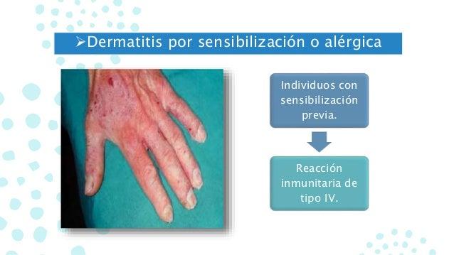 El ungüento de la psoriasis en la piel de los pies