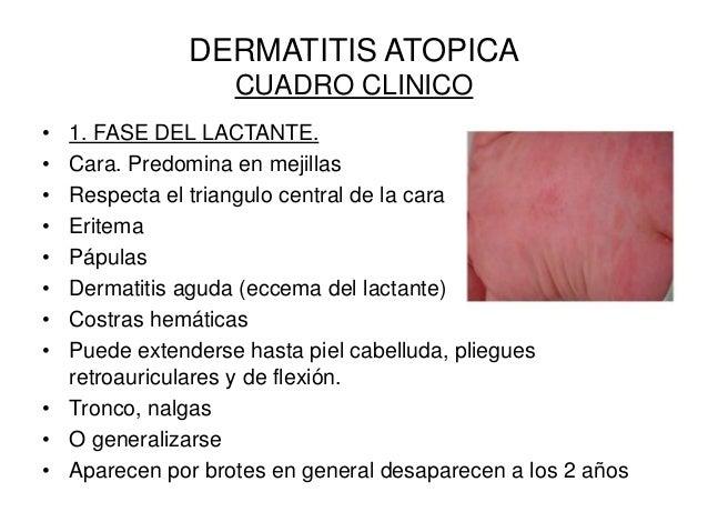 Que dar de comer al niño de 8 meses con atopicheskim por la dermatitis