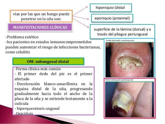 El tratamiento complejo del hongo de uña en los pies